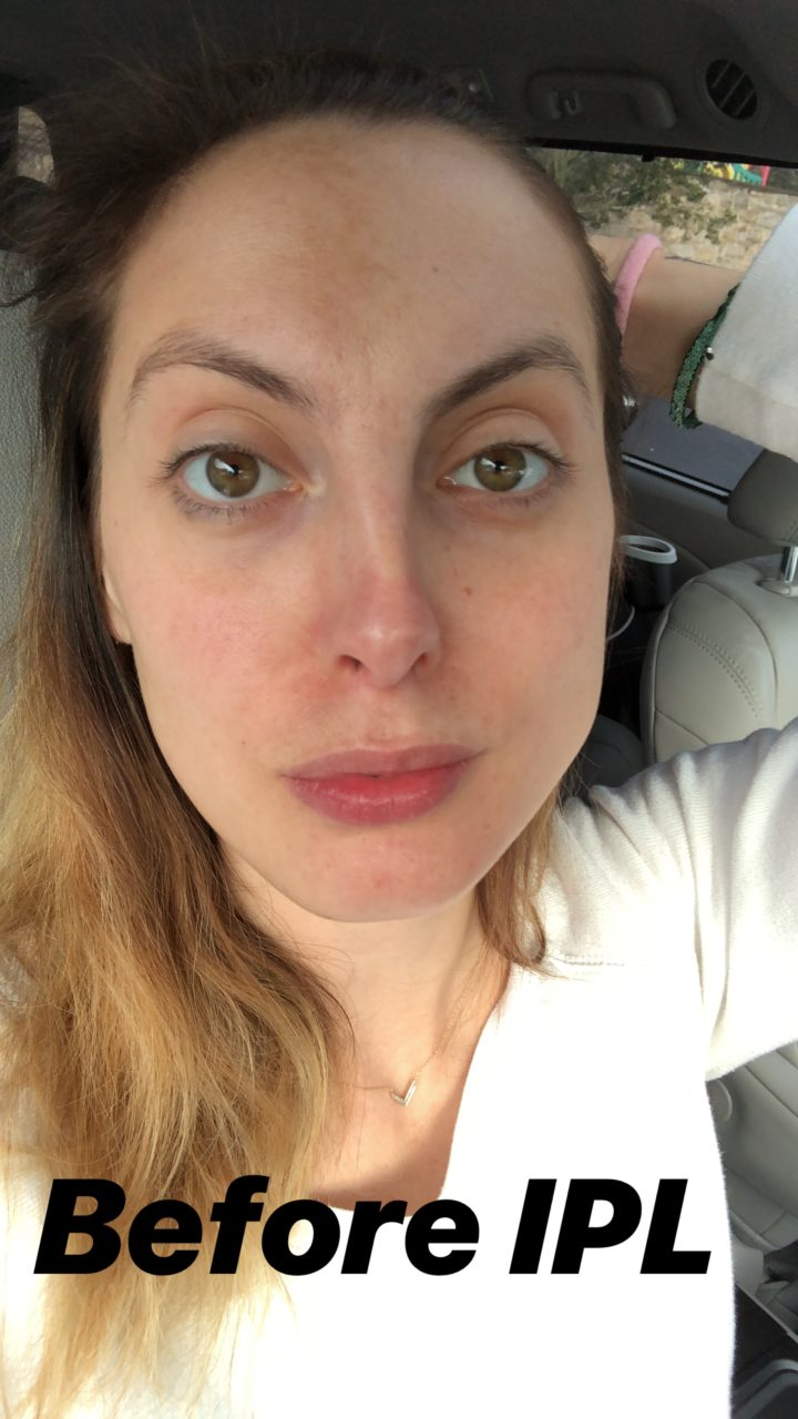 Eva Amurri Martino shares her struggle with post-pregnancy melasma spots and her solution for fading them.
