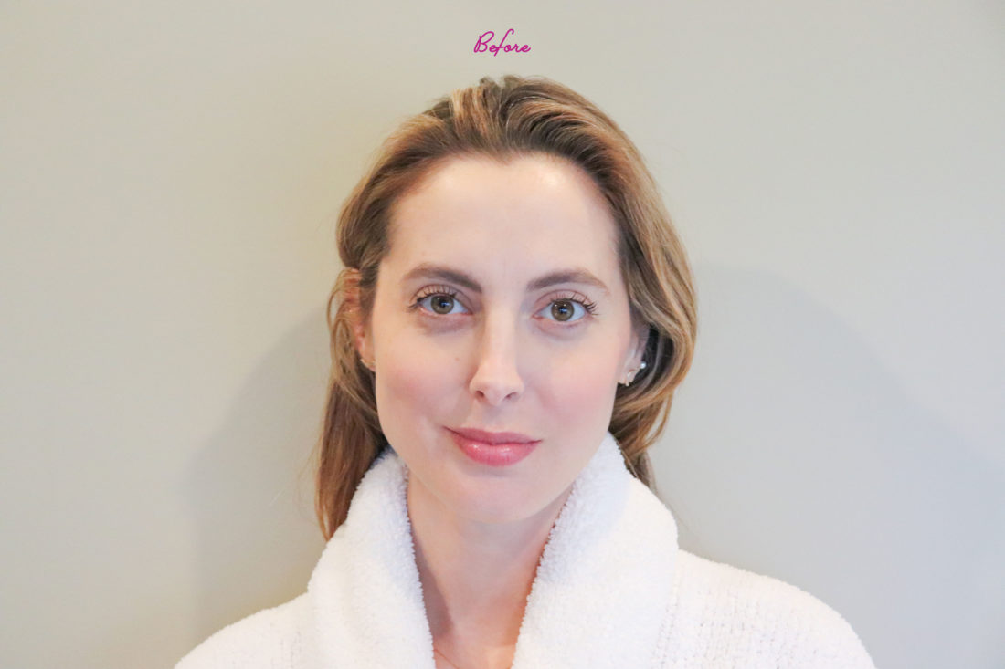 Blogger Eva Amurri before gua sha treatment