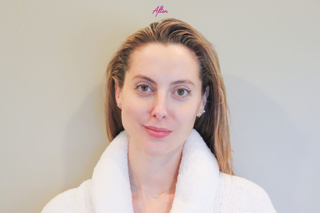 Blogger Eva Amurri after gua sha treatment